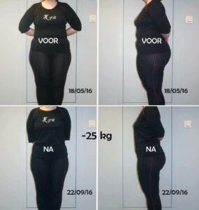 proteïne-dieet of 'very low calorie diet' voor & na resultaat